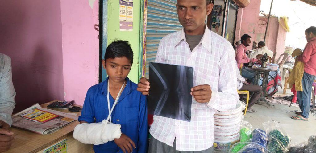 शिक्षिका की पिटाई से टूटा छात्र का हाथ, बढ़ा बवाल